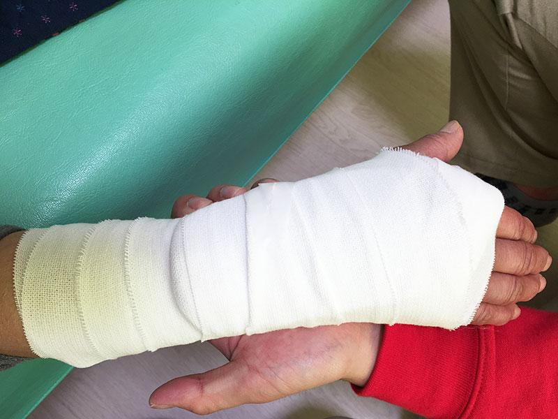 交通事故のリハビリ、捻挫、骨折について